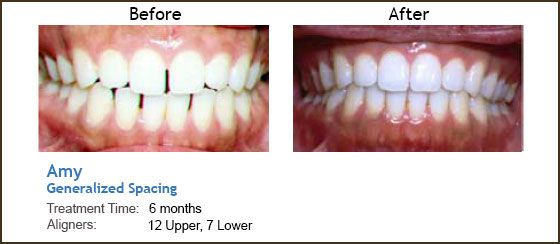 Invisalign Before And After Gap Before  amp After Invisalign