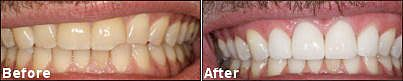 Before and after photo of teeth.