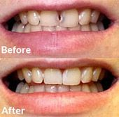 Before and after photo of dental bonding case.