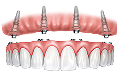 Dentures to be snapped into place on implant connectors