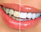 Before and after photo of teeth whitening.