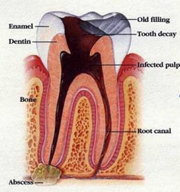 Diagram of a tooth.