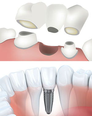 Bridge and implant comparison.