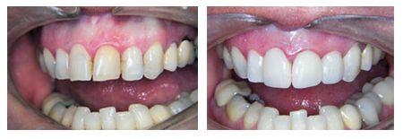 Hi-Tech Dentistry, Atlanta, GA