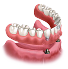 Implant-supported removable snap-in dentures
