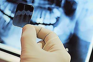 Digital X-ray.