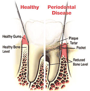 Cleanings & Gum Disease, Atlanta, GA