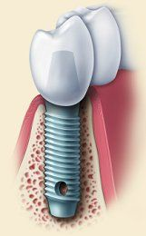 Dental implant cutaway.