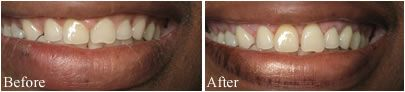 Laser Gum Treatment, Atlanta, GA