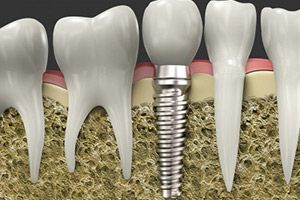 Cutaway of implant.