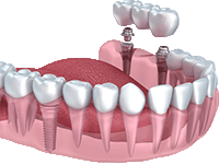 Implant supported bridge.