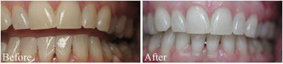 Before and after photo of teeth whitening case.